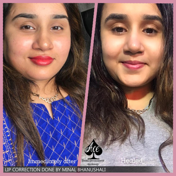 Best Lip Correction Treatment in Mumbai
