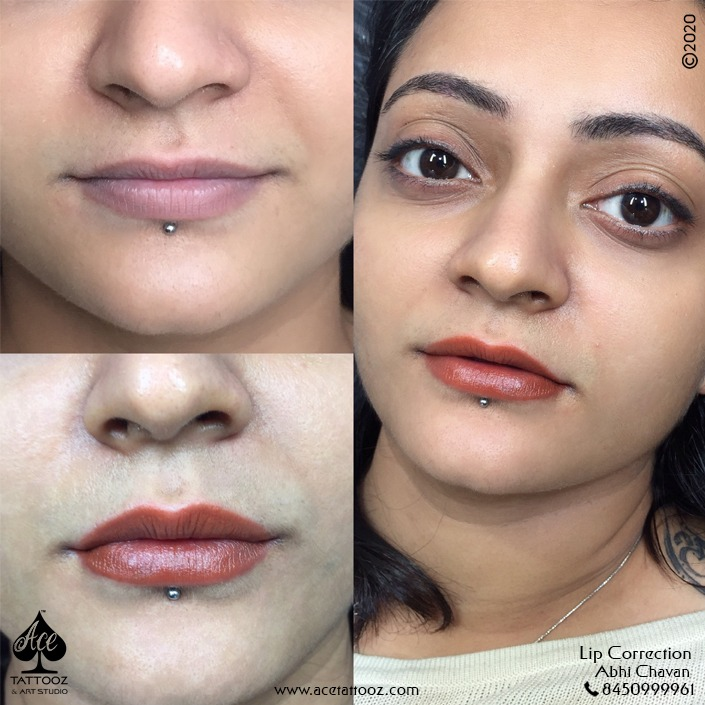 Best Lip Blush Treatment in Mumbai